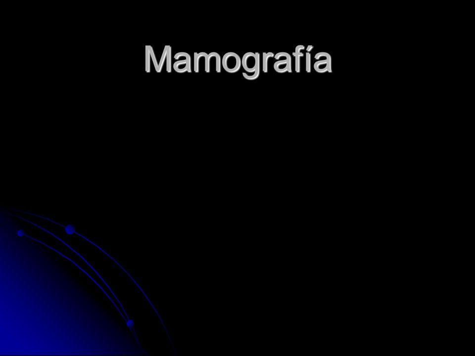 Mamografía Esencial para Dx preciso Detección temprana