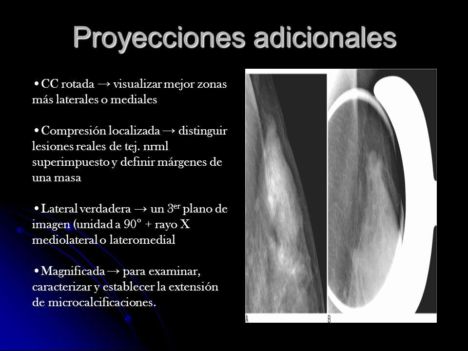 Mujeres con implantes mamarios Silicon y soluc.