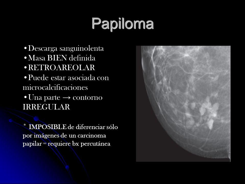 Lipoma Clx masa suaves y lobuladas Clx masa suaves y lobuladas Masa BIEN definida de grasa contenida dentro de una delgada cápsula Masa BIEN definida de grasa contenida dentro de una delgada cápsula Radiolúcida Radiolúcida