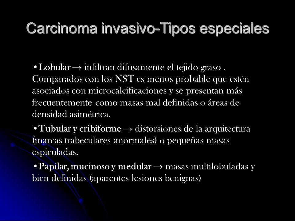 Carcinoma invasivo-Tipos especiales Lobular infiltran difusamente el tejido graso. Comparados con los NST es menos probable que estén asociados con mi