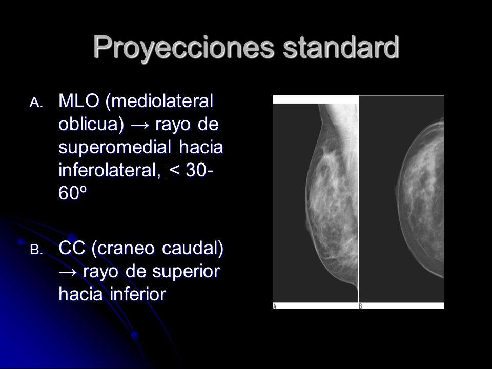 Posicionamiento de mamas