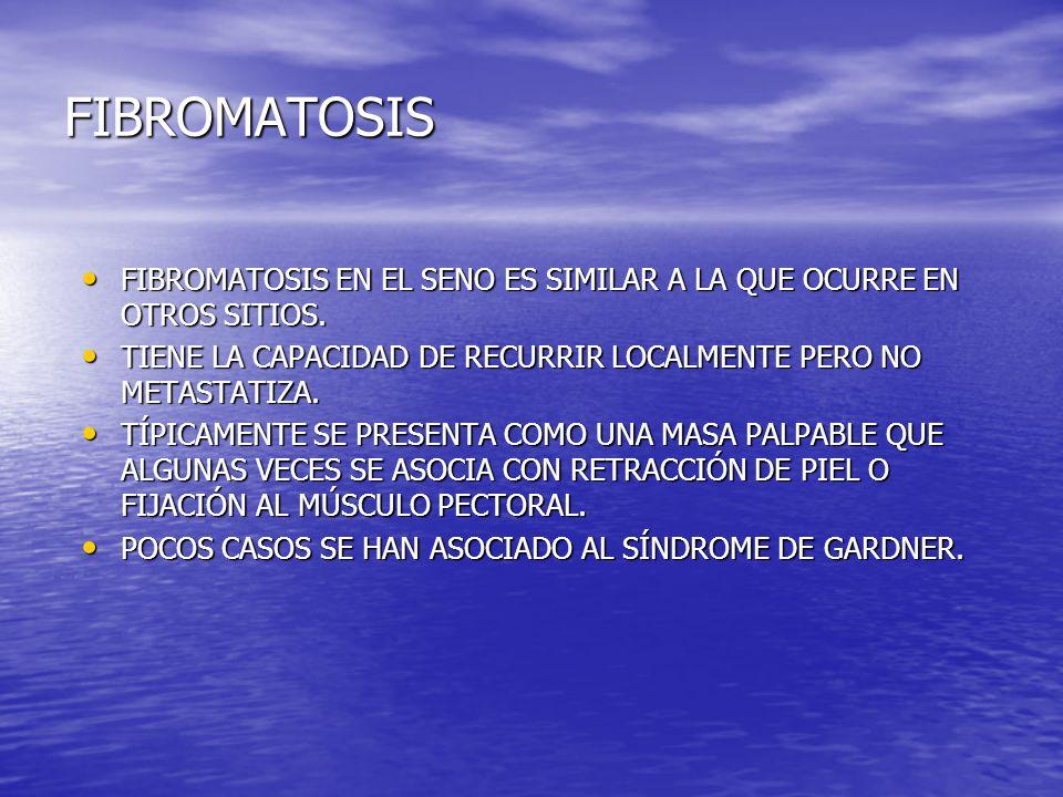 FIBROMATOSIS FIBROMATOSIS EN EL SENO ES SIMILAR A LA QUE OCURRE EN OTROS SITIOS. FIBROMATOSIS EN EL SENO ES SIMILAR A LA QUE OCURRE EN OTROS SITIOS. T
