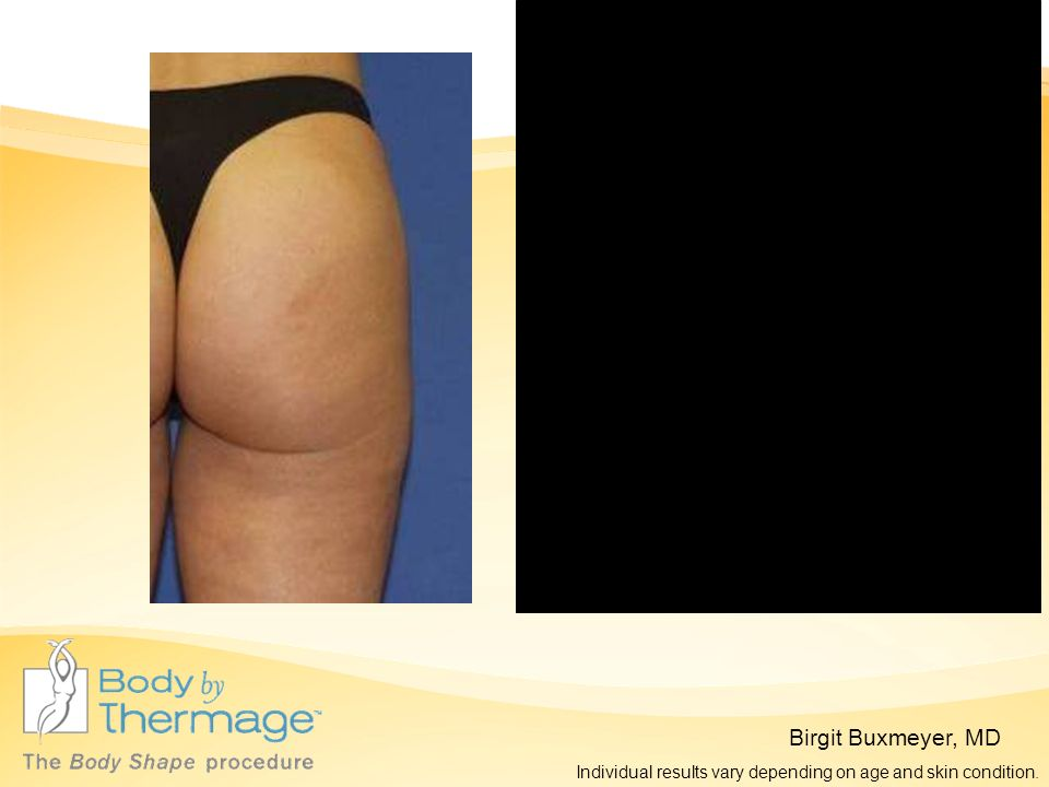 Birgit Buxmeyer, MD 2 Months Post Thermage Before Thermage Individual results vary depending on age and skin condition.