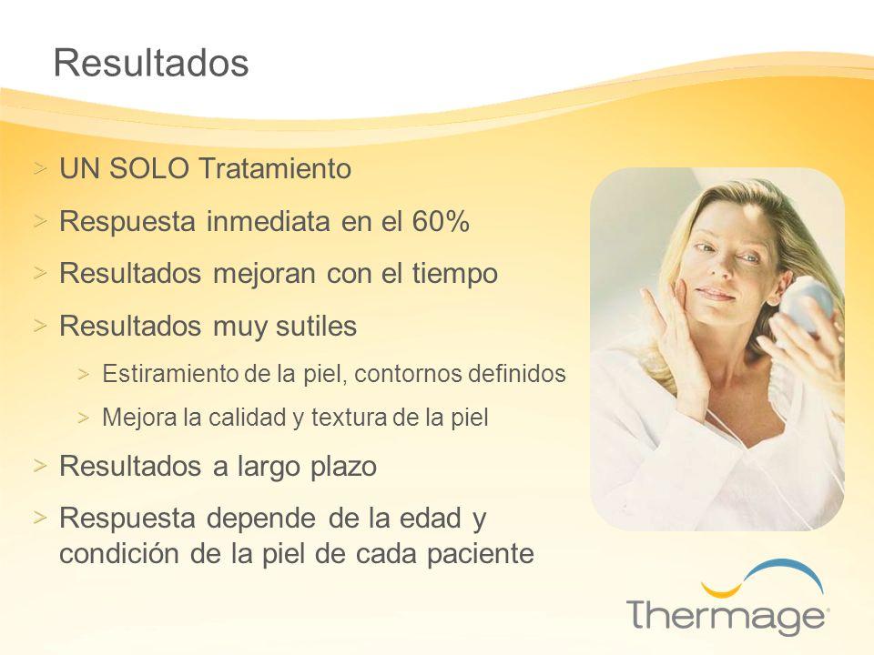 Resultados UN SOLO Tratamiento Respuesta inmediata en el 60% Resultados mejoran con el tiempo Resultados muy sutiles Estiramiento de la piel, contorno