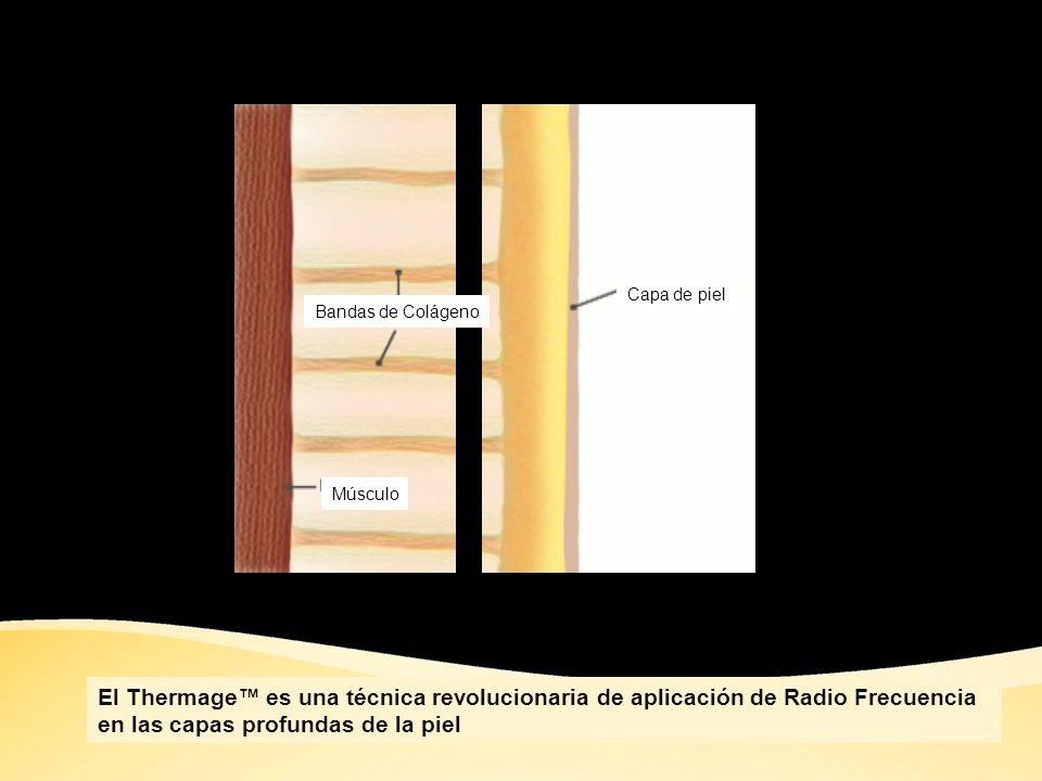 Antes del tratamiento Bandas de Colágeno con laxitud Capa de piel Músculo Con la edad las capas de colageno disminuyen