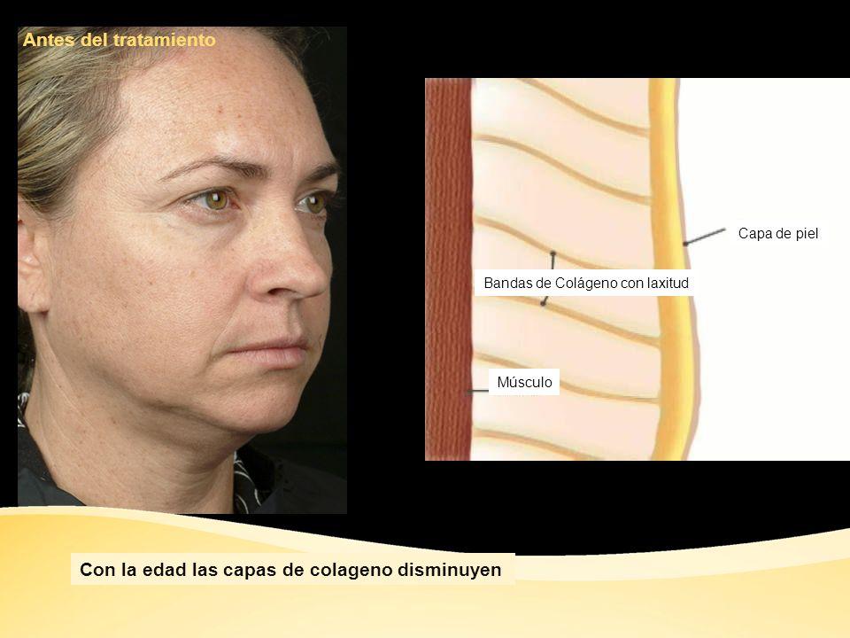 Area Tratada Area No Tratada Cambios visibles durante el tratamiento Susan Kilmer, M.D.