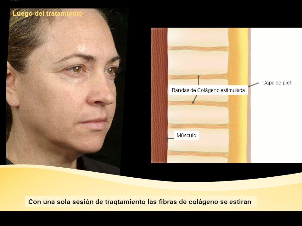 Luego del tratamiento Bandas de Colágeno estimulada Músculo Capa de piel Con una sola sesión de traqtamiento las fibras de colágeno se estiran