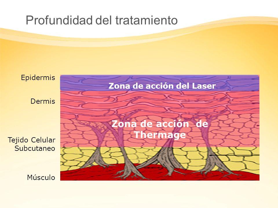 Tejido Celular Subcutaneo Dermis Epidermis Músculo Profundidad del tratamiento Zona de acción de Thermage Zona de acción del Laser