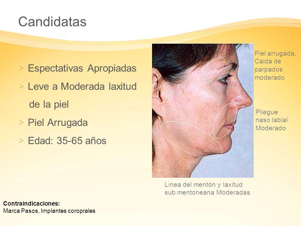 Candidatas Espectativas Apropiadas Leve a Moderada laxitud de la piel Piel Arrugada Edad: 35-65 años Linea del mentón y laxitud sub mentoneana Moderad