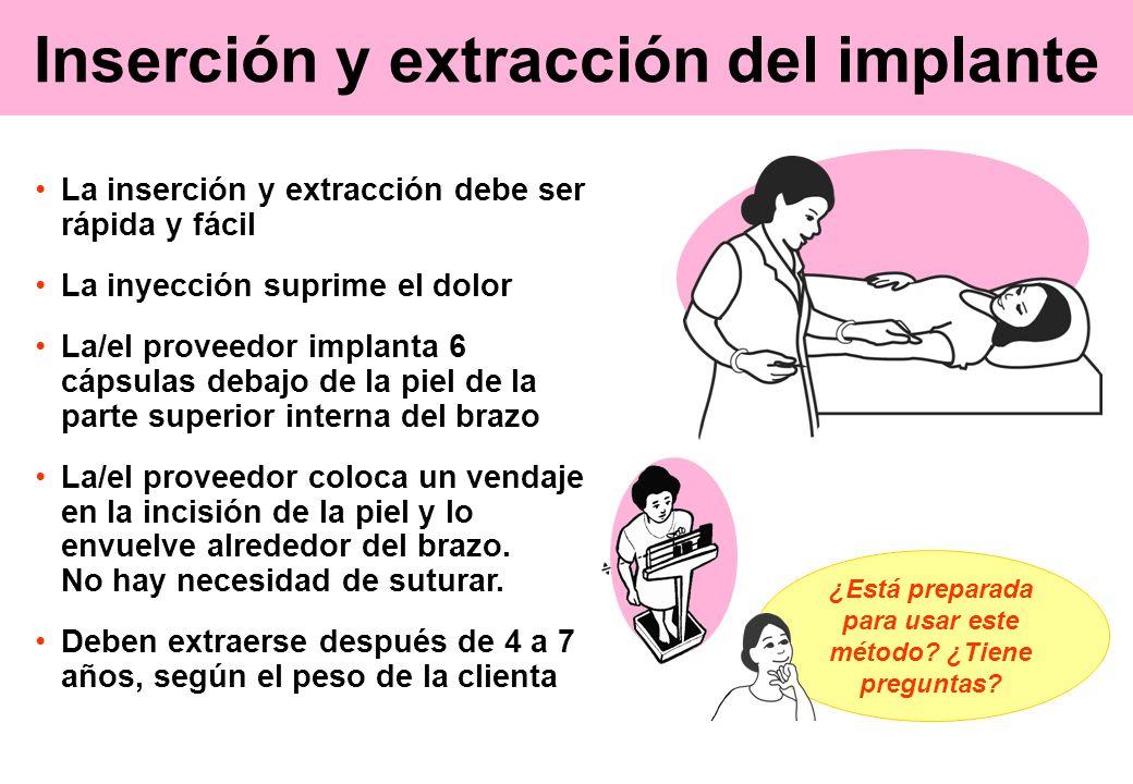 Inserción y extracción del implante La inserción y extracción debe ser rápida y fácil La inyección suprime el dolor La/el proveedor implanta 6 cápsula