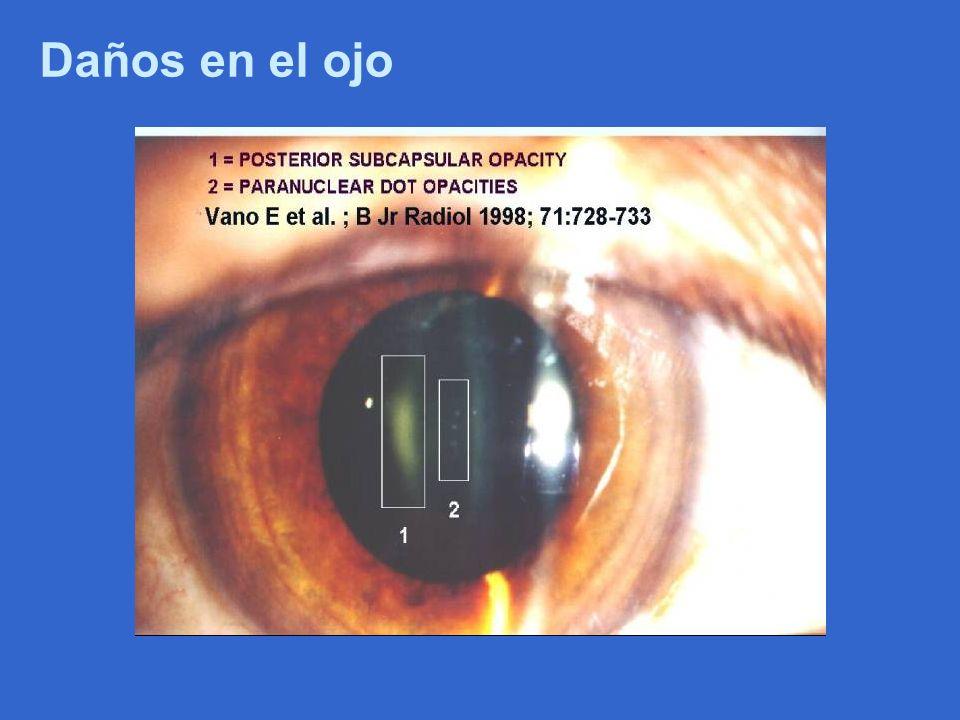 Daños en el ojo
