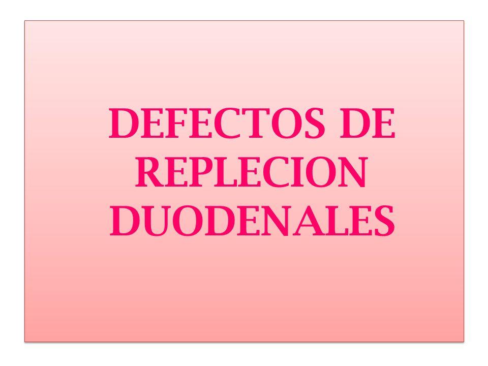 HIPERPLASIA DE GALNDULAS DE BURNER respuesta reactiva de la mucosa duodenal a la enfermedad ulcerosa péptica.