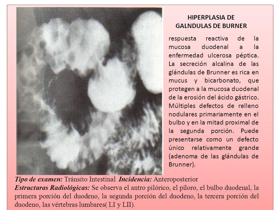 HIPERPLASIA DE GALNDULAS DE BURNER respuesta reactiva de la mucosa duodenal a la enfermedad ulcerosa péptica. La secreción alcalina de las glándulas d