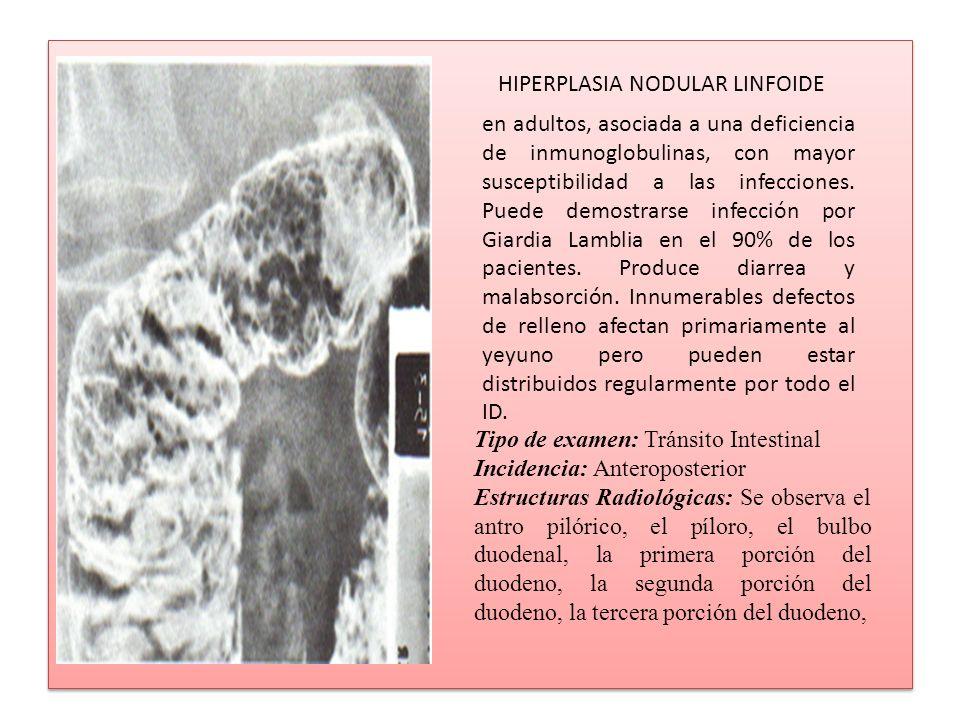 en adultos, asociada a una deficiencia de inmunoglobulinas, con mayor susceptibilidad a las infecciones. Puede demostrarse infección por Giardia Lambl
