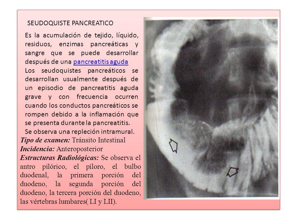 SEUDOQUISTE PANCREATICO Es la acumulación de tejido, líquido, residuos, enzimas pancreáticas y sangre que se puede desarrollar después de una pancreat