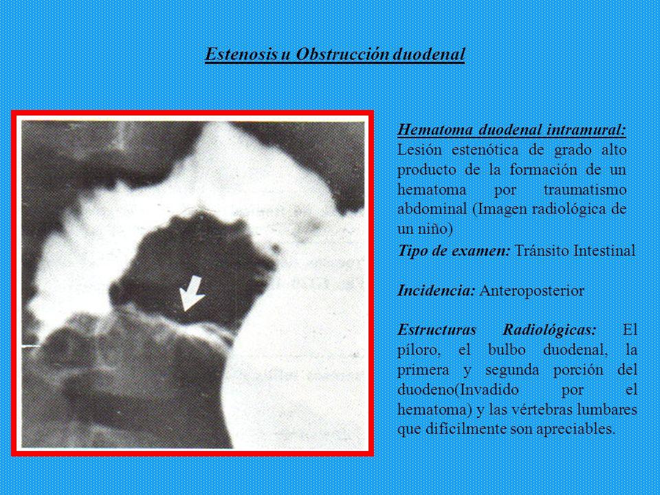 Hematoma duodenal intramural: Lesión estenótica de grado alto producto de la formación de un hematoma por traumatismo abdominal (Imagen radiológica de