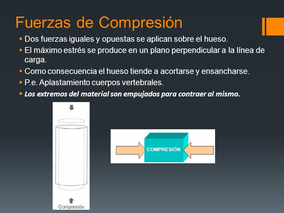 Fuerzas de Compresión Dos fuerzas iguales y opuestas se aplican sobre el hueso. El máximo estrés se produce en un plano perpendicular a la línea de ca