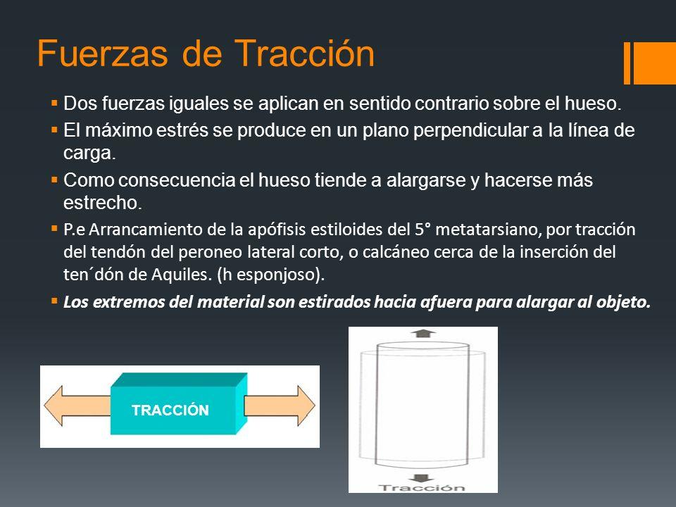 Fuerzas de Tracción Dos fuerzas iguales se aplican en sentido contrario sobre el hueso. El máximo estrés se produce en un plano perpendicular a la lín