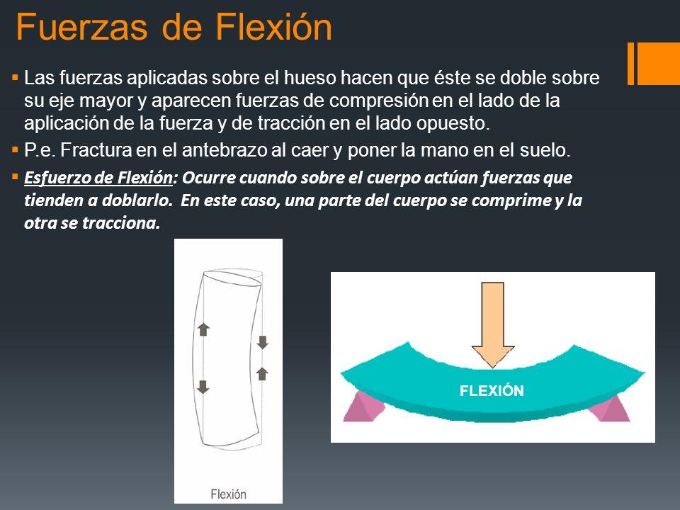 Fuerzas de Flexión Las fuerzas aplicadas sobre el hueso hacen que éste se doble sobre su eje mayor y aparecen fuerzas de compresión en el lado de la a