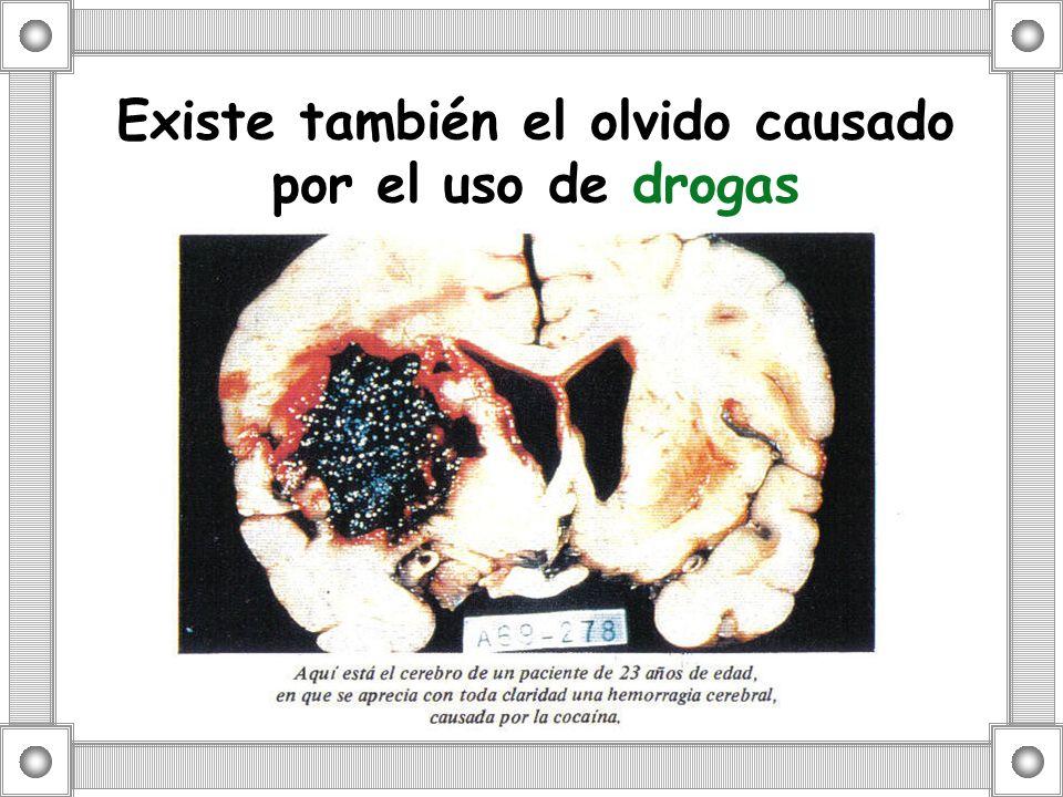 Existe también el olvido causado por el uso de drogas