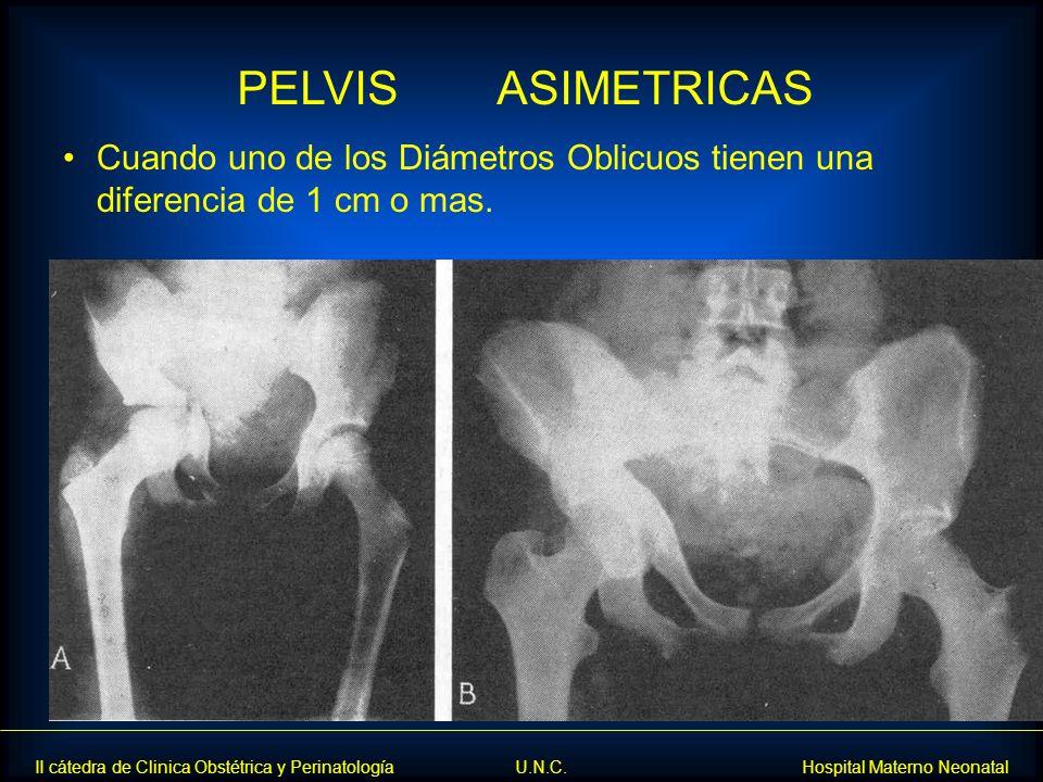 II cátedra de Clinica Obstétrica y Perinatología U.N.C. Hospital Materno Neonatal Cuando uno de los Diámetros Oblicuos tienen una diferencia de 1 cm o