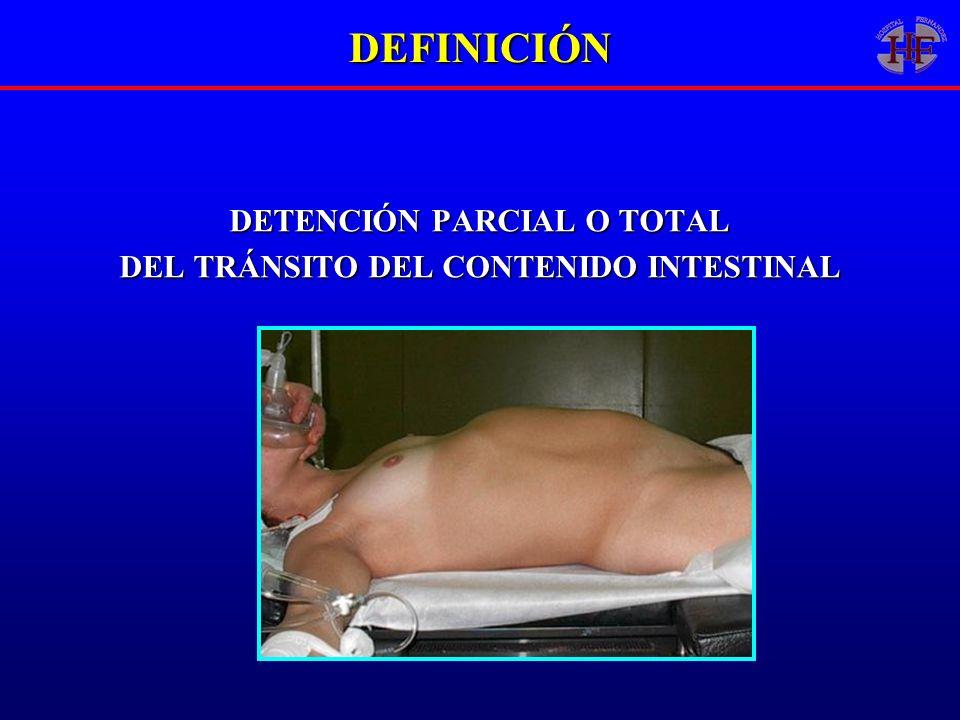 DEFINICIÓN DETENCIÓN PARCIAL O TOTAL DEL TRÁNSITO DEL CONTENIDO INTESTINAL