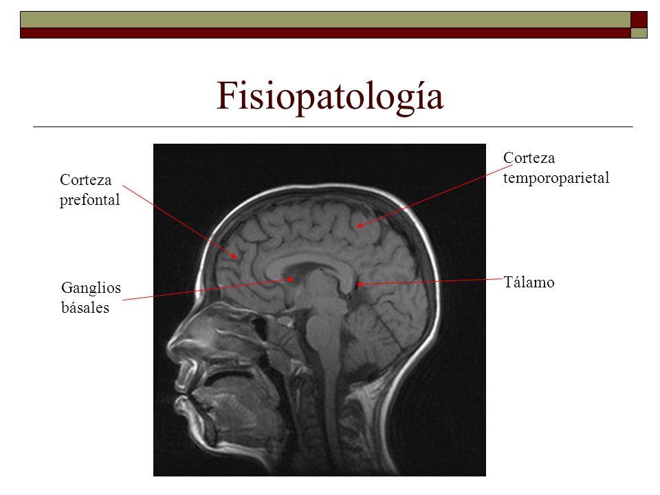 Fisiopatología Corteza prefontal Corteza temporoparietal Tálamo Ganglios básales