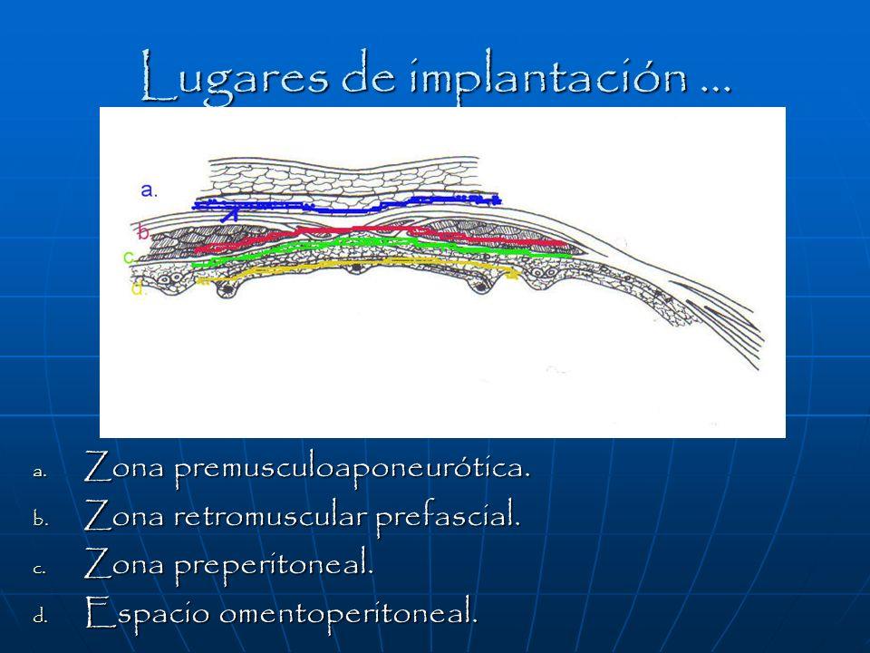 Lugares de implantación … a. Zona premusculoaponeurótica. b. Zona retromuscular prefascial. c. Zona preperitoneal. d. Espacio omentoperitoneal.