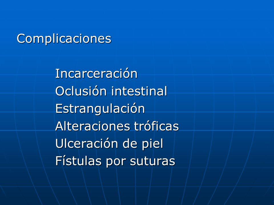 Complicaciones Incarceración Incarceración Oclusión intestinal Oclusión intestinal Estrangulación Estrangulación Alteraciones tróficas Alteraciones tr