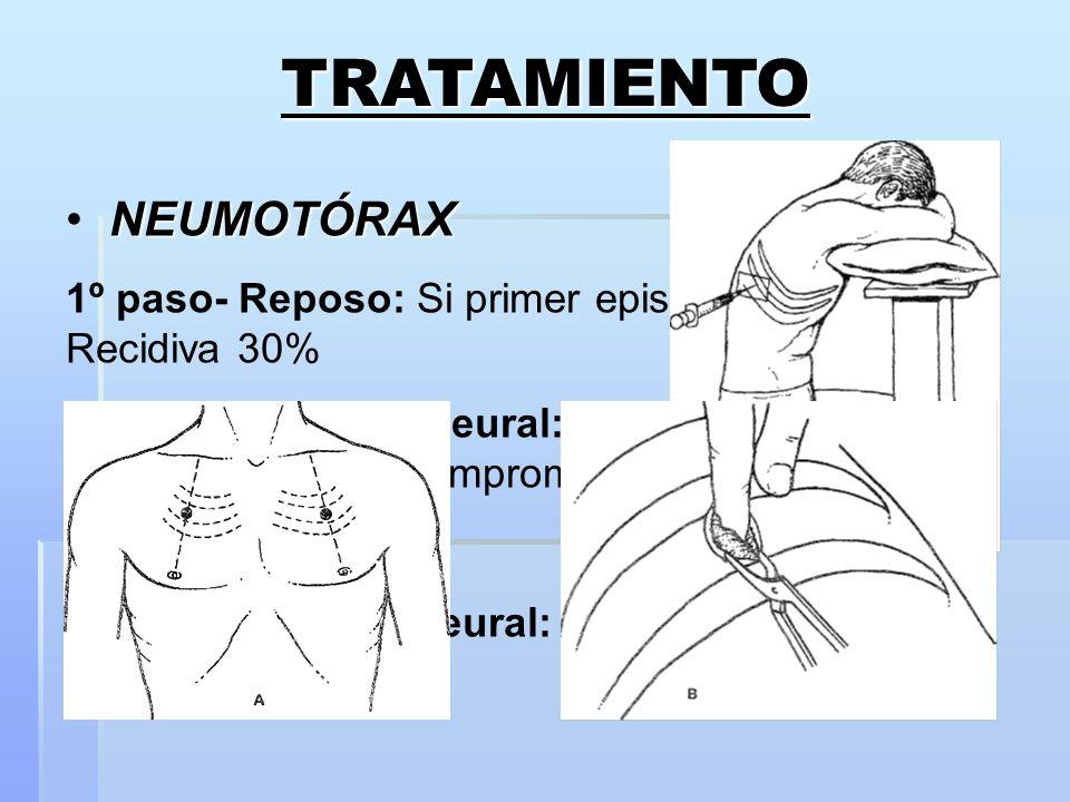 TRATAMIENTO NEUMOTÓRAX 1º paso- Reposo: Si primer episodio y <10%. Recidiva 30% 2º paso- Punción pleural: SOLO NTX hipertensivo con compromiso hemodin