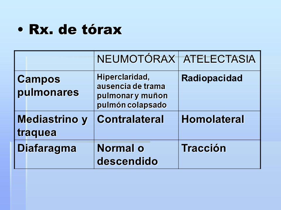 Rx. de tórax Rx. de tórax NEUMOTÓRAXATELECTASIA Campos pulmonares Hiperclaridad, ausencia de trama pulmonar y muñon pulmón colapsado Radiopacidad Medi