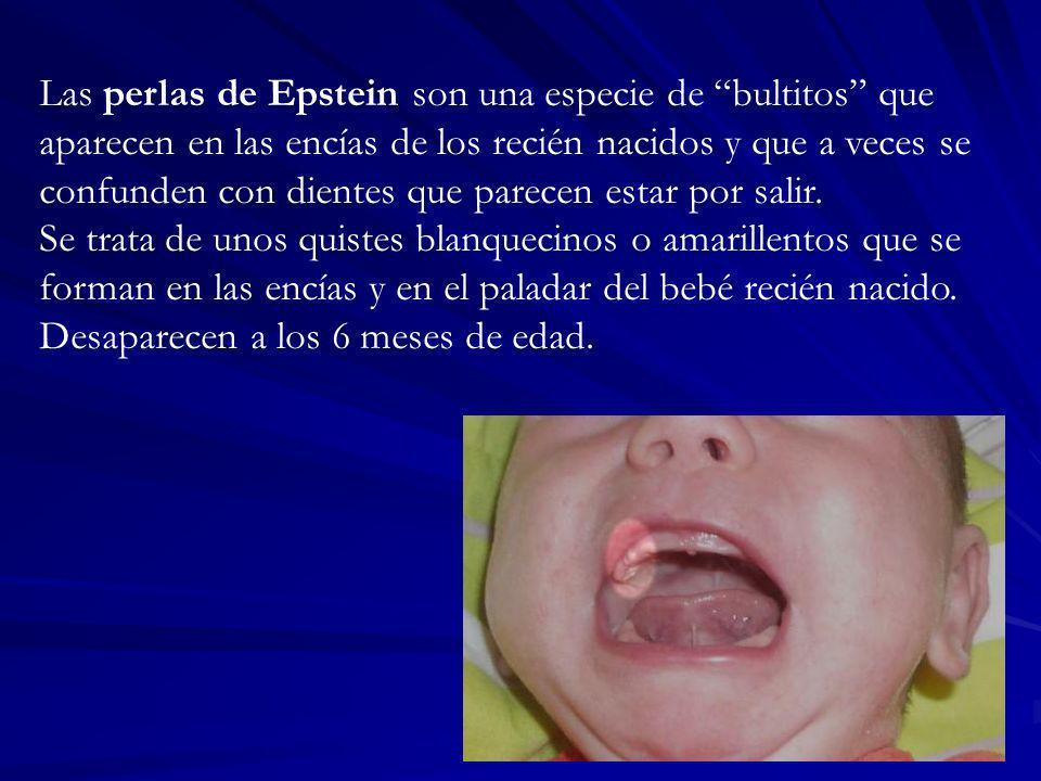 Las perlas de Epstein son una especie de bultitos que aparecen en las encías de los recién nacidos y que a veces se confunden con dientes que parecen