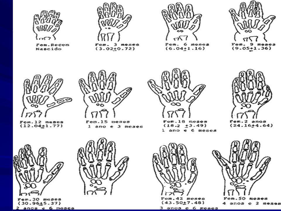 Valoración: 1.Evaluación de la talla Greulich Pyle 2.Radiografía de carpo para establecer la edad ósea ( a través del numero, tamaño y conformación de