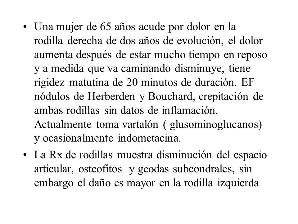 Definición Enfermedad articular degenerativa Erosión del cartílago articular Hipertrofia ósea Esclerosis subcondral.