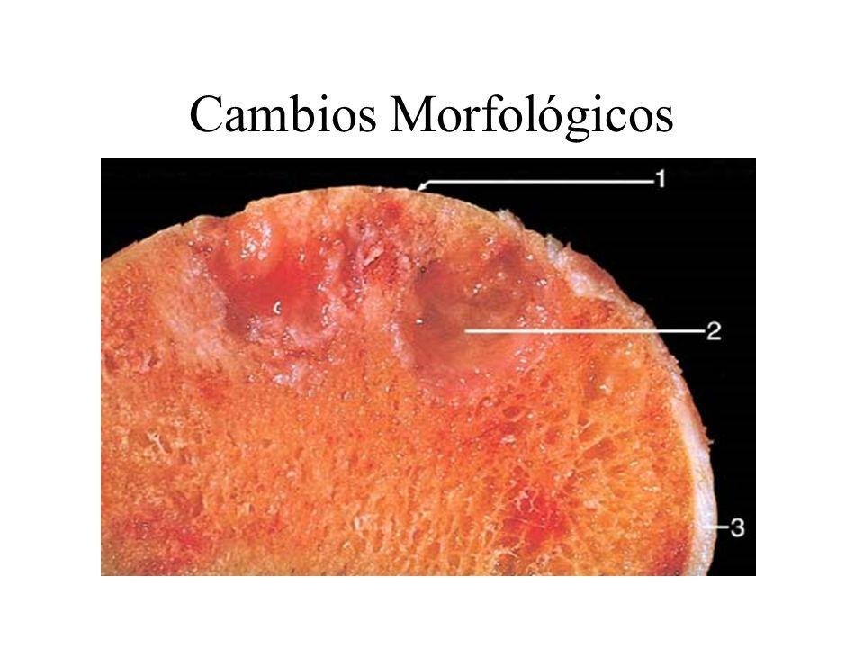 Cambios Morfológicos. NormalOsteoartritis