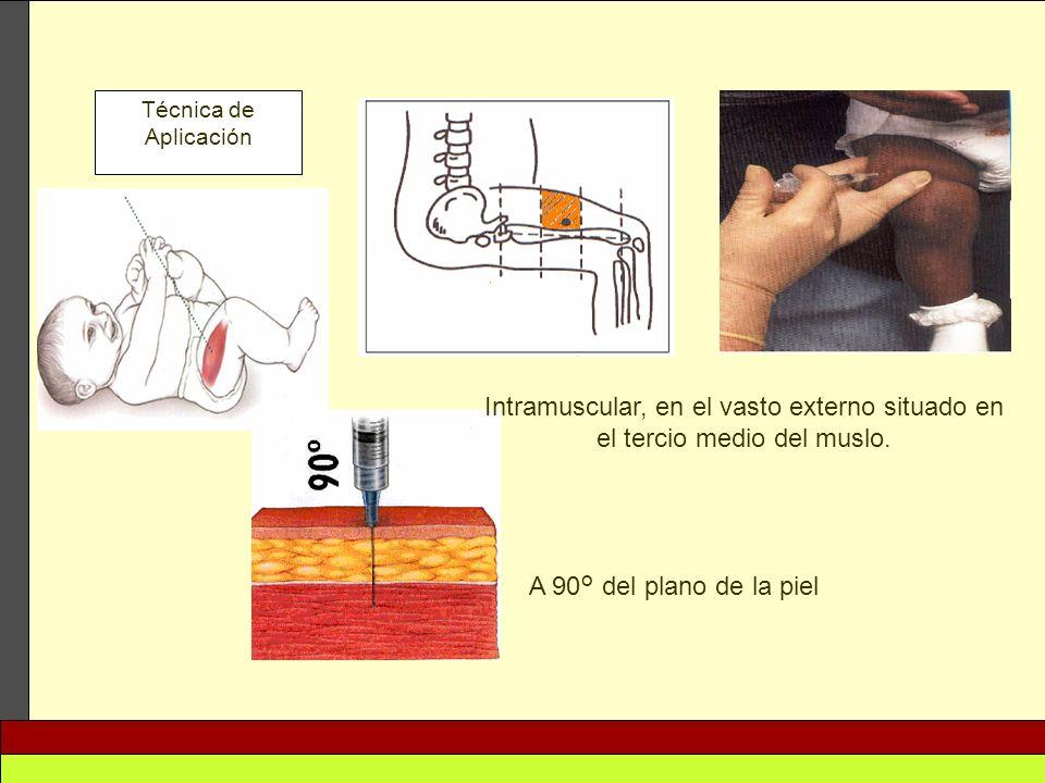 Técnica de Aplicación Intramuscular, en el vasto externo situado en el tercio medio del muslo. A 90° del plano de la piel