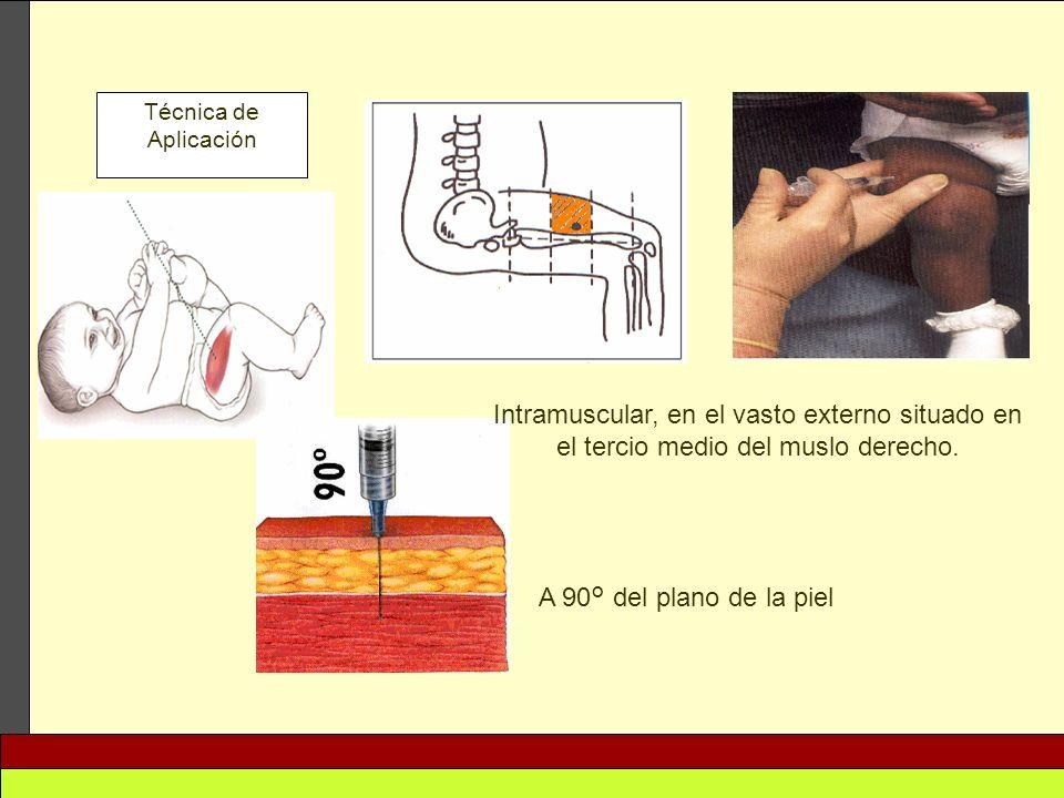 Técnica de Aplicación Intramuscular, en el vasto externo situado en el tercio medio del muslo derecho. A 90° del plano de la piel