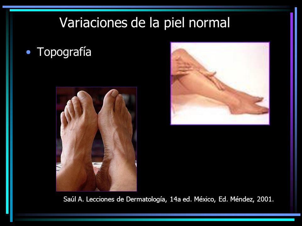 Variaciones de la piel normal Topografía Saúl A. Lecciones de Dermatología, 14a ed. México, Ed. Méndez, 2001.