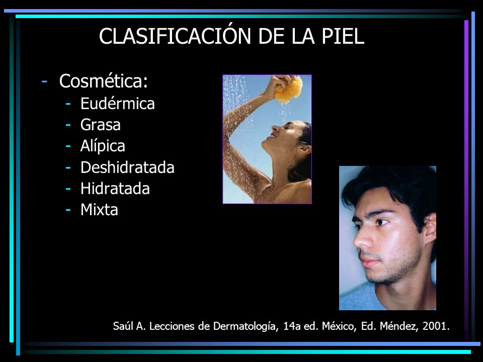 CLASIFICACIÓN DE LA PIEL -Cosmética: -Eudérmica -Grasa -Alípica -Deshidratada -Hidratada -Mixta Saúl A. Lecciones de Dermatología, 14a ed. México, Ed.