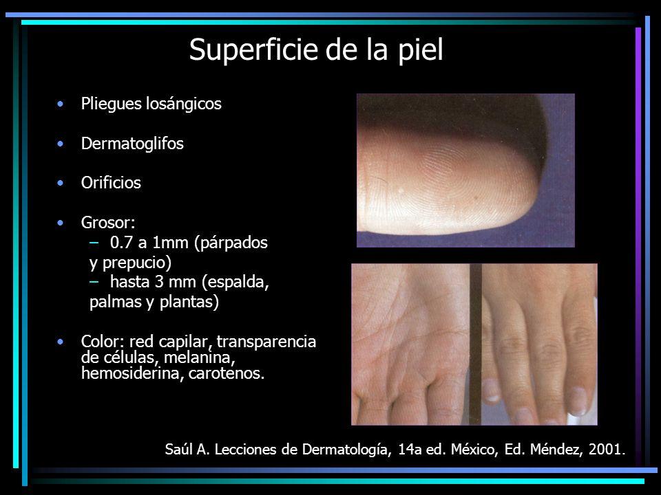 FOTOTIPOS DE PIEL (Pathak, Nghiem y Fitzpatrick, 1999) IBlanca marfil, se quema al sol fácil y gravemente, nunca se broncea, sensibilidad 4+, MED* 15-30.
