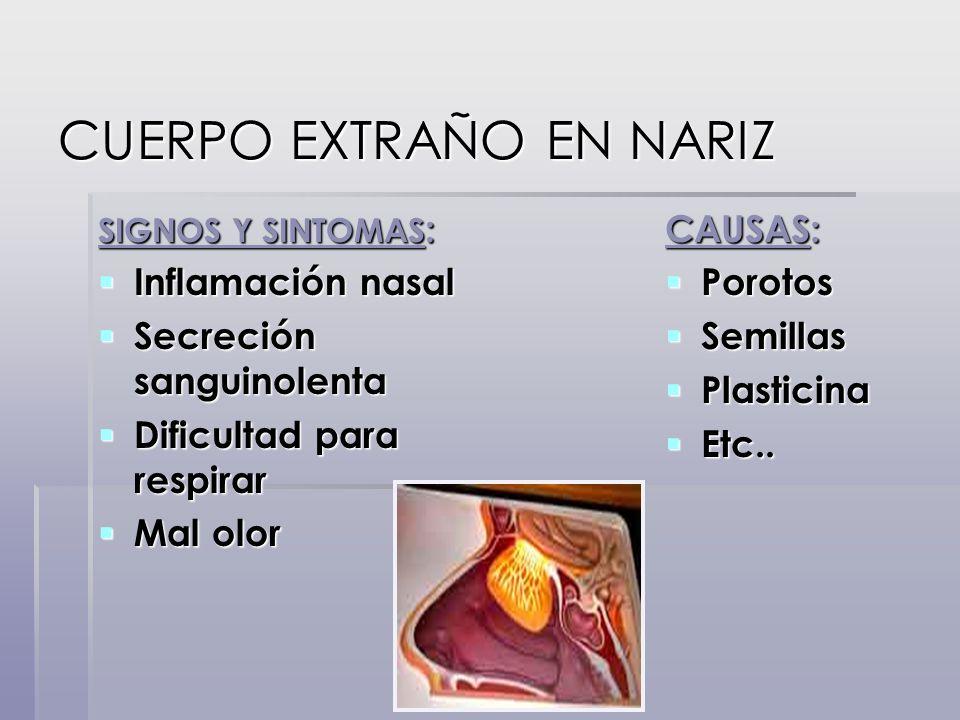 SIGNOS Y SINTOMAS : Inflamación nasal Inflamación nasal Secreción sanguinolenta Secreción sanguinolenta Dificultad para respirar Dificultad para respi