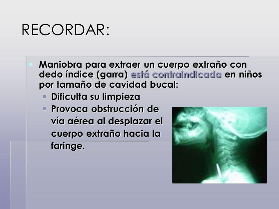 RECORDAR: RECORDAR: Maniobra para extraer un cuerpo extraño con dedo índice (garra) está contraindicada en niños por tamaño de cavidad bucal: Maniobra