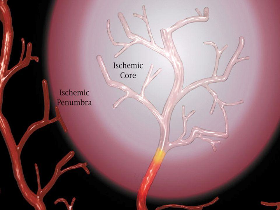 1.Tratamiento en fase aguda 1.Medidas generales 2.Modificar las alteraciones bioquímicas que de la cascada isquémica (Neuroprotección) 3.Restaurar el flujo sanguíneo cerebral (trombolísis) 2.Prevención secundaria 3.Rehabilitación Estrategias de tratamiento en el infarto cerebral agudo