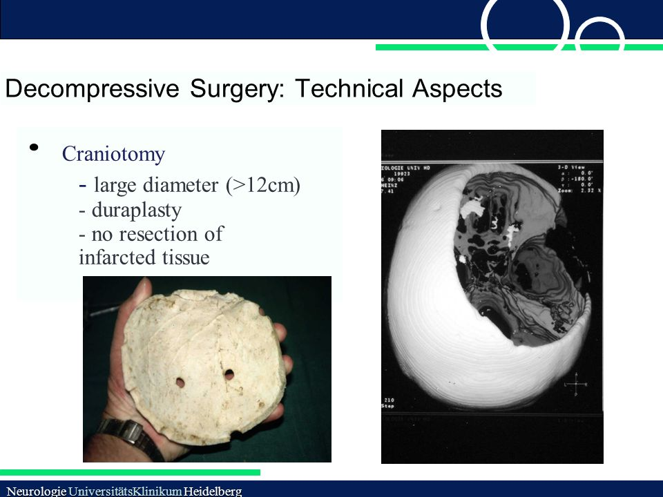 Decompressive Surgery: Technical Aspects Neurologie UniversitätsKlinikum Heidelberg Craniotomy - large diameter (>12cm) - duraplasty - no resection of