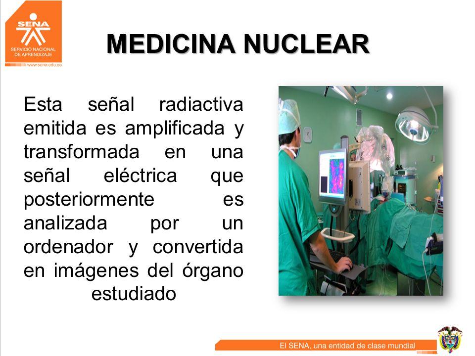 MEDICINA NUCLEAR Esta señal radiactiva emitida es amplificada y transformada en una señal eléctrica que posteriormente es analizada por un ordenador y