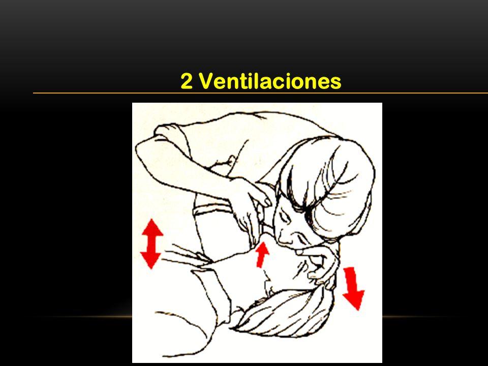 2 Ventilaciones