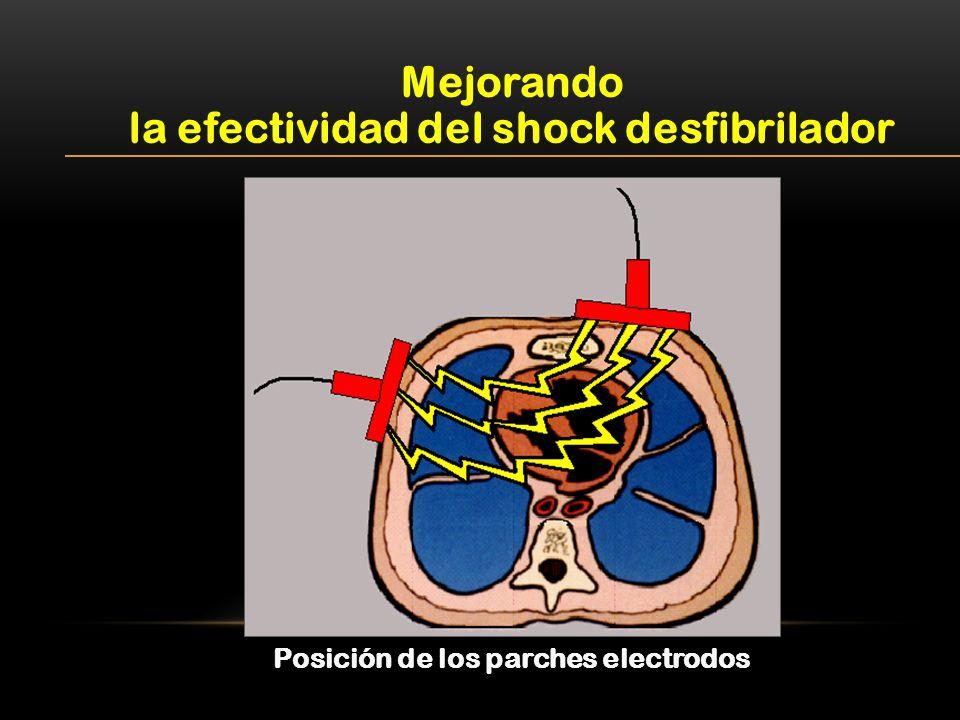 Mejorando la efectividad del shock desfibrilador Posición de los parches electrodos