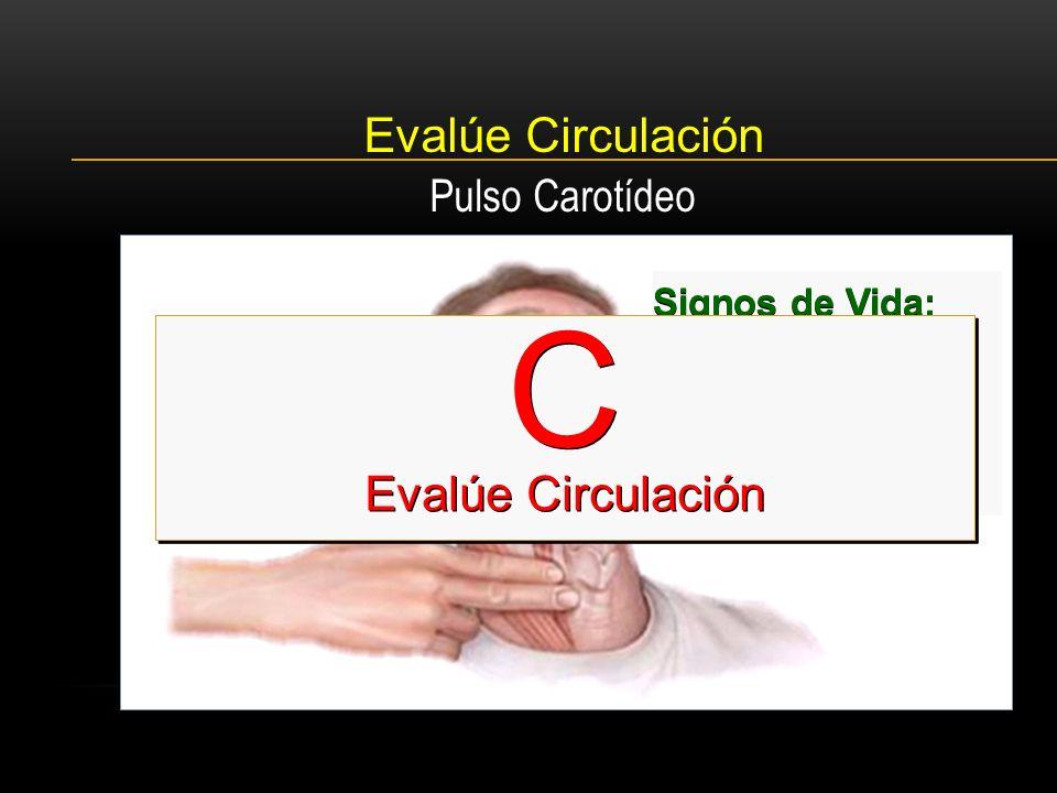 Evalúe Circulación Signos de vida Signos de Vida: Movimiento. Tos. Deglución. Pulso Carotídeo C Evalúe Circulación C Evalúe Circulación