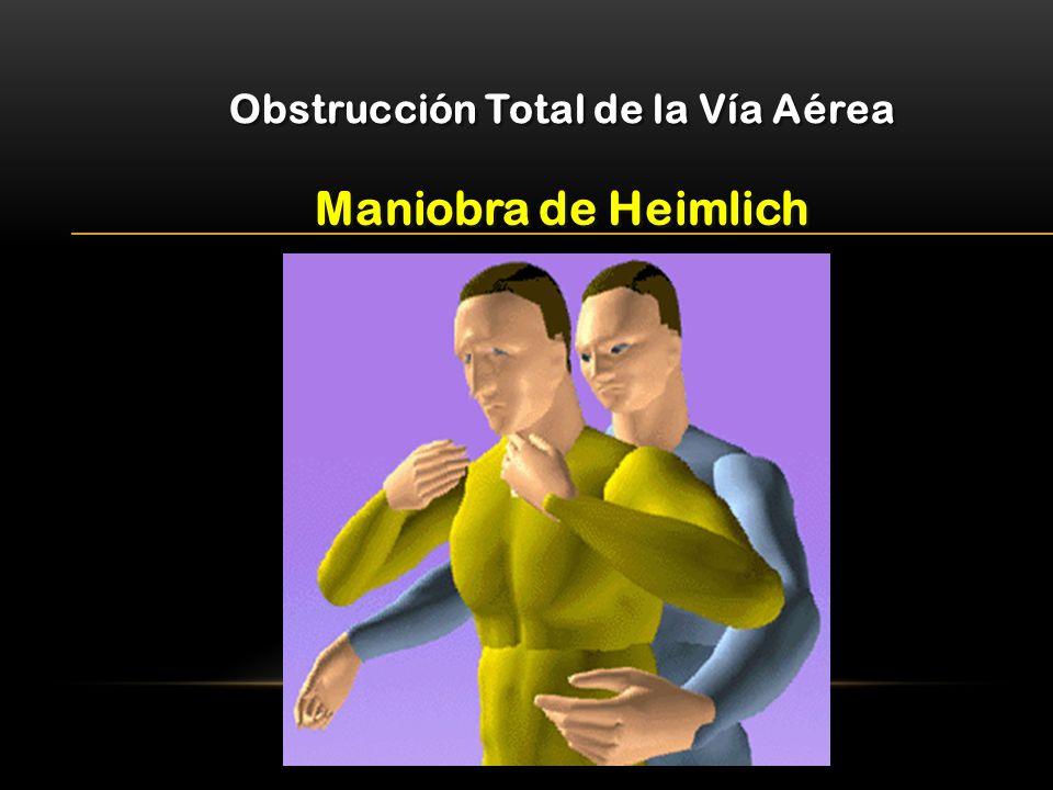 Maniobra de Heimlich Obstrucción Total de la Vía Aérea