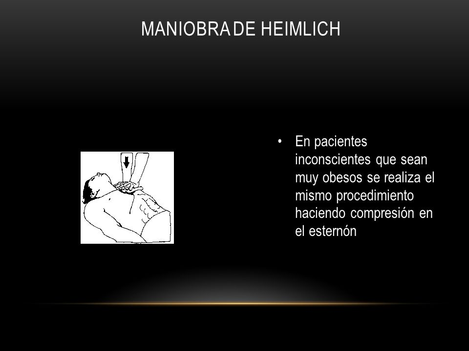 En pacientes inconscientes que sean muy obesos se realiza el mismo procedimiento haciendo compresión en el esternón